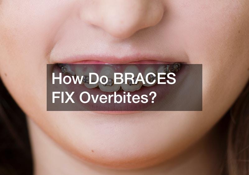 How Do BRACES FIX Overbites?